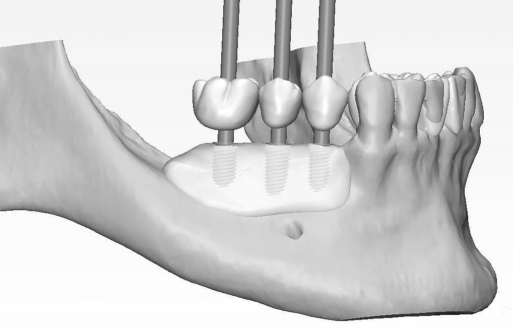 El Dr. Colmenero es especialistas en regeneración ósea dental