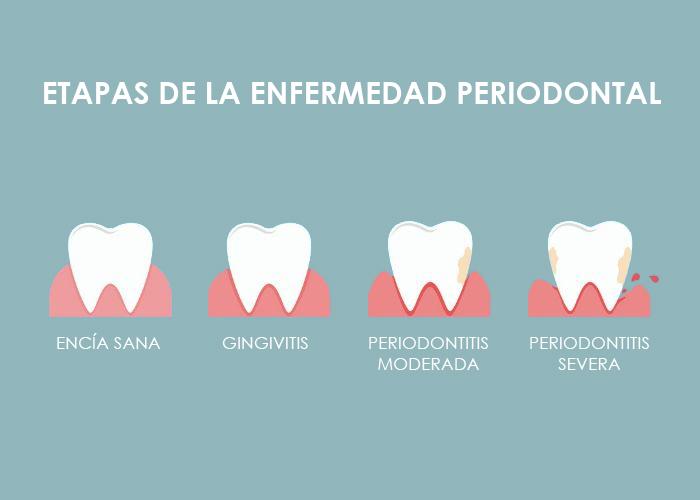 Conoce las diferentes fases de la enfermedad periodontal