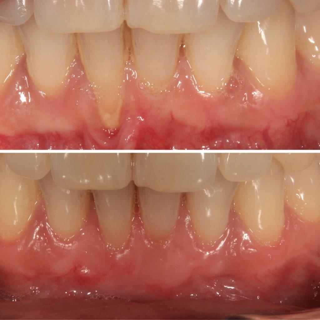 Recesión gingival en diente central