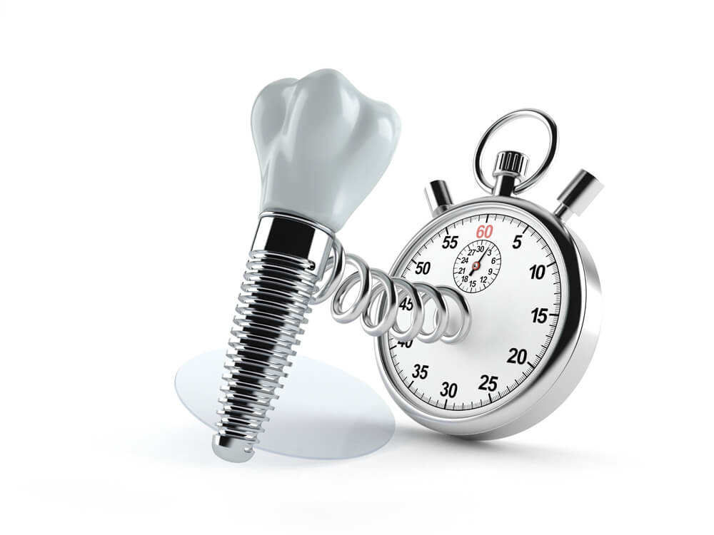 La vida media un implante dental es muy variable, depende de muchos factores