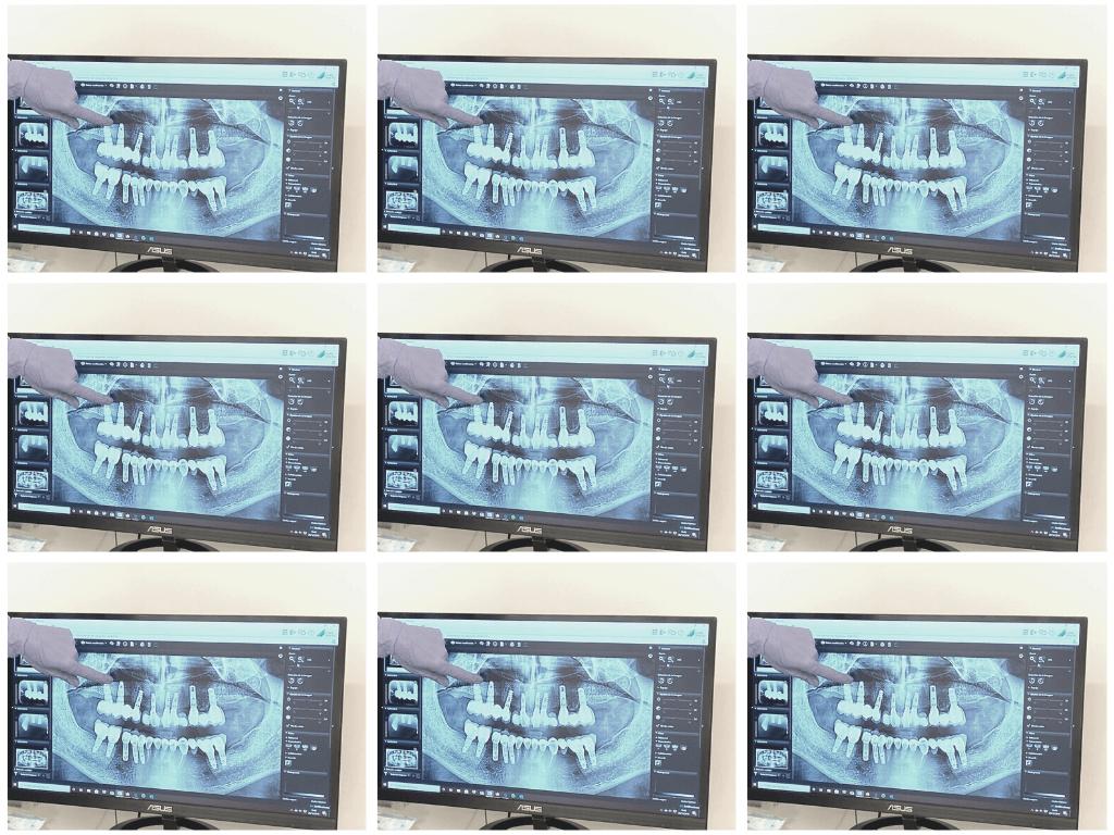 la infección del hueso que rodea el implante dental puede causar su pérdida