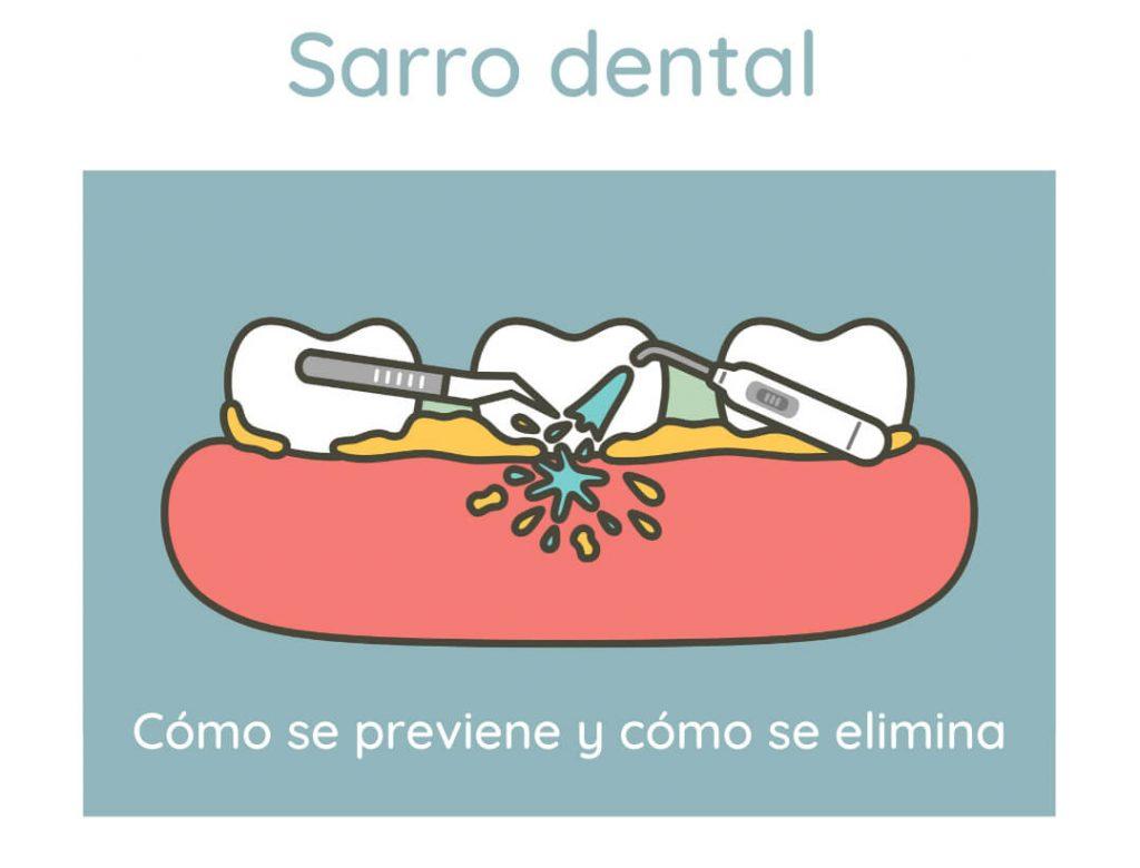 El sarro dental se puede prevenir y se puede eliminar